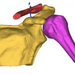 Reconstruction 3D d'une épaule (Humérus + Omoplate + Clavicule)
