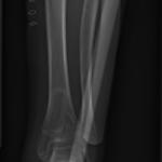 Radio post-opératoire d'un cas d'ostéotomie
